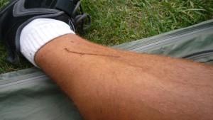 Part III: Legs always cut up and bleeding. Always.